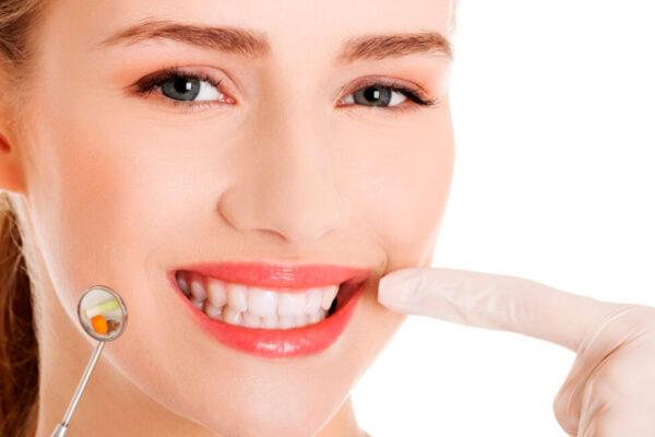 Зубний камінь на зубах. Чим небезпечний? Як прибрати?