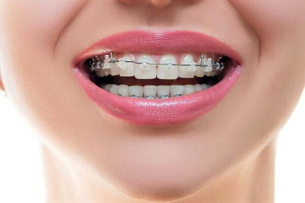 Ортодонтія. Часті питання