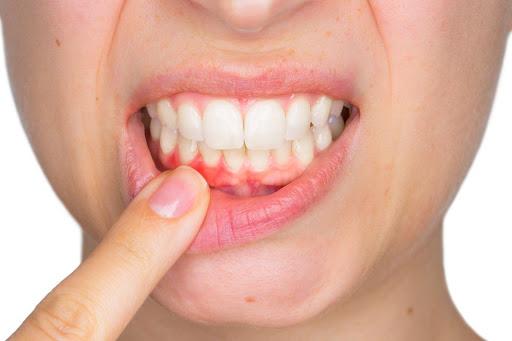 Зубний наліт. Як захистити зуби?