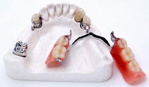 Условно-съемное бюгельное протезирование. Качественные протезы на замках Bredent (Бредент) и МК1