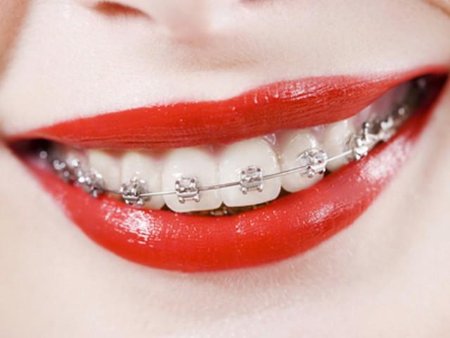 Металлические брекеты – наиболее популярные, эффективные и доступные ортодонтические конструкции
