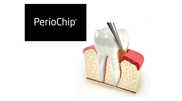 PerioChip – быстрое и эффективное лечение заболеваний десен в стоматологии «Гармония»