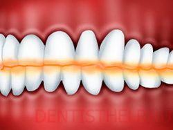 Стираемость зубов. Опасно ли это? Что можно сделать?