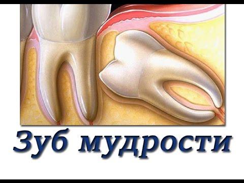 Удаление зубов мудрости. Пять распространенных осложнений и как их избежать