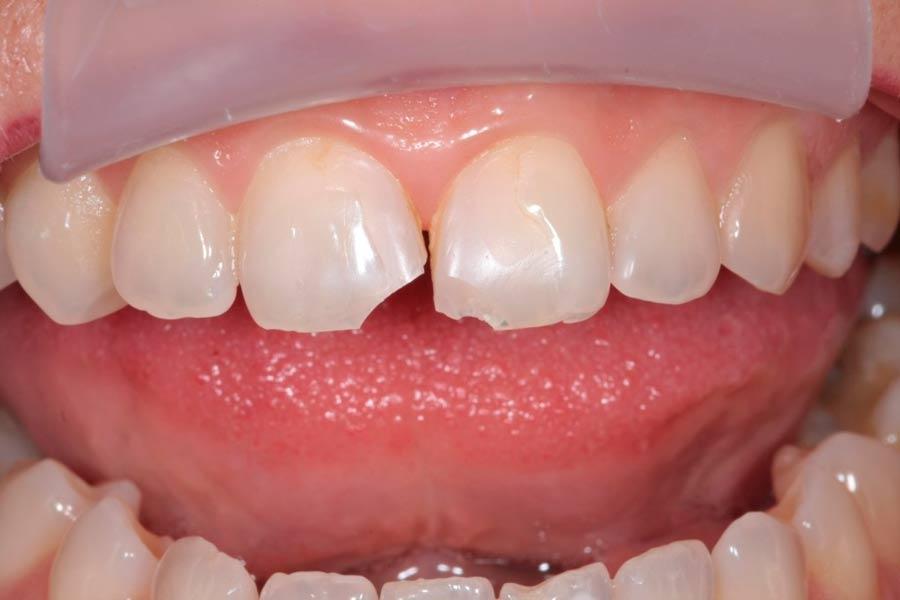 Скол зуба – что делать?