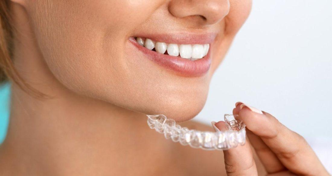 Могут ли зубы искривляться после ношения брекетов