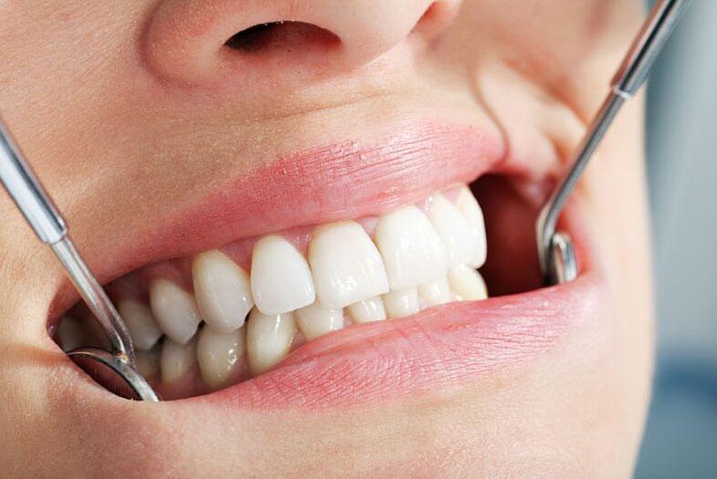 Протезирование зубов по доступной цене