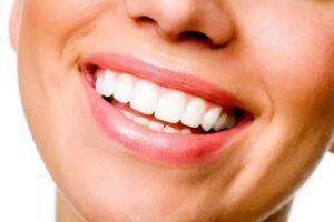 Имплантация зубов. Стоит ли решаться?