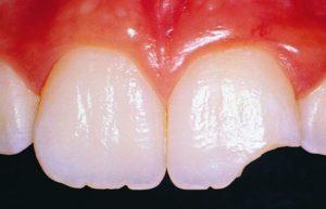 Скол зуба. Лечить или нет?