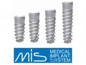 Импланты МИС – идеальное соотношение цена/качество