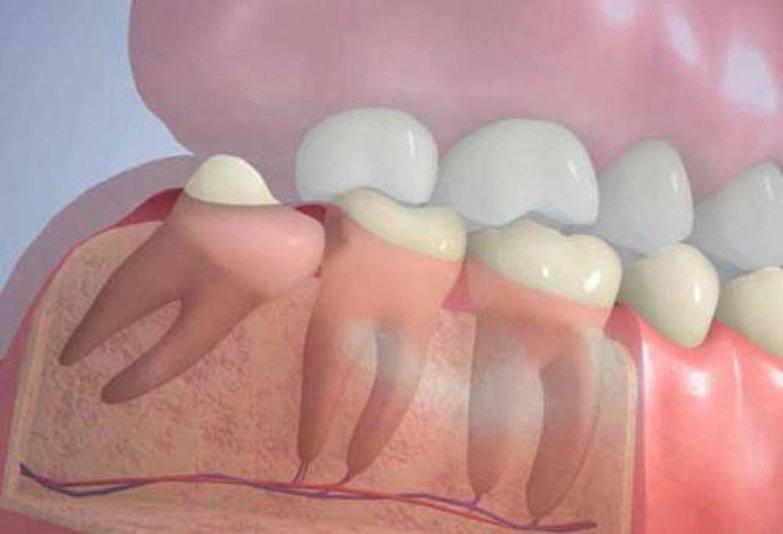 Лечение и удаление зубов мудрости