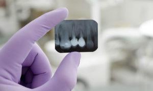 Какая диагностика может быть назначена при лечении зубов?