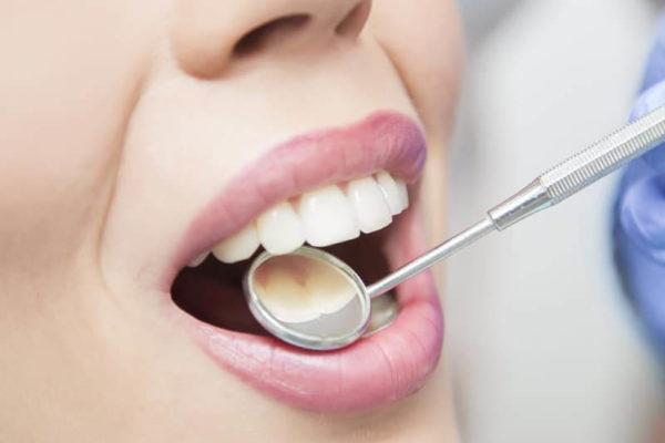 Лечение осложненного кариеса. Можно ли сохранить зуб?