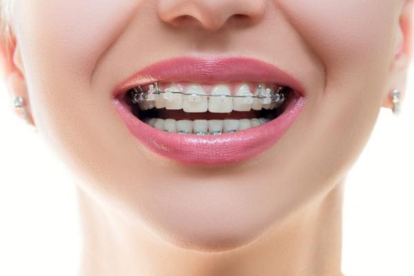 Выравнивание зубов: как не потратить время и деньги зря?