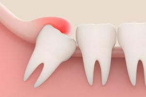 6 причин для удаления зуба