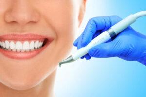 Зубной камень на зубах. Чем опасен? Как убрать?