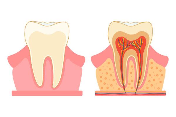 Пульпит зуба. Как вовремя распознать проблему?