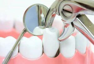 Боли после удаления зуба. Только ли стоматолог-хирург виноват?