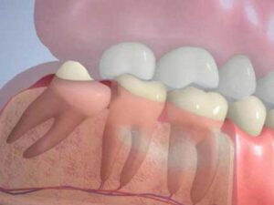 Болит зуб мудрости: что делать? Где удалять?
