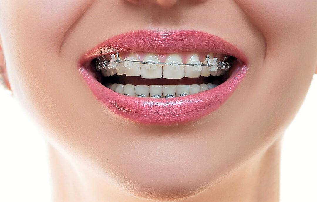 Ортодонтия. Частые вопросы ортодонтии