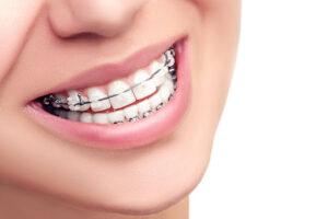 Частые вопросы ортодонтии
