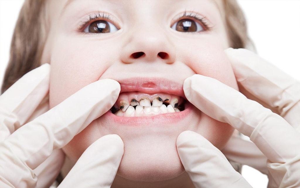 Почему чернеют молочные зубы у ребенка?