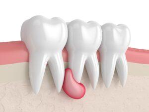 Киста зуба. Лечить или удалять?