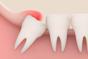 Удаление зуба мудрости. Без боли и осложнений