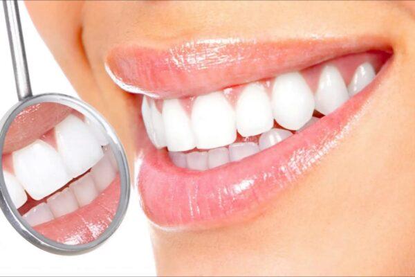 Вам восстановили зуб керамической вкладкой. Что важно?