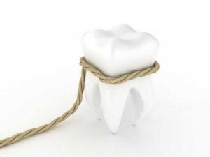 Безболезненное удаление зубов мудрости