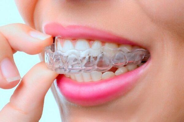 Элайнеры - невидимый помощник для выравнивания зубов